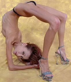фото анорексии