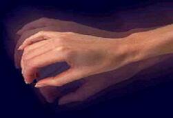 тремор рук фото