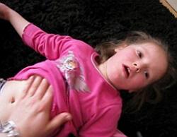 Эпилептический приступ у ребенка